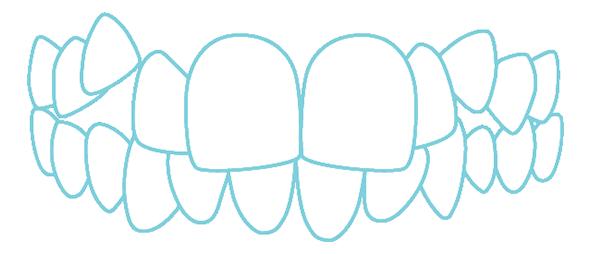八重歯・乱杭歯のイラスト