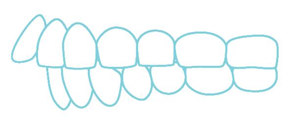出っ歯のイラスト