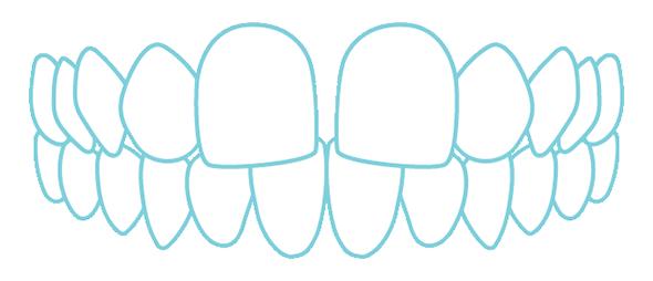 すきっ歯のイラスト